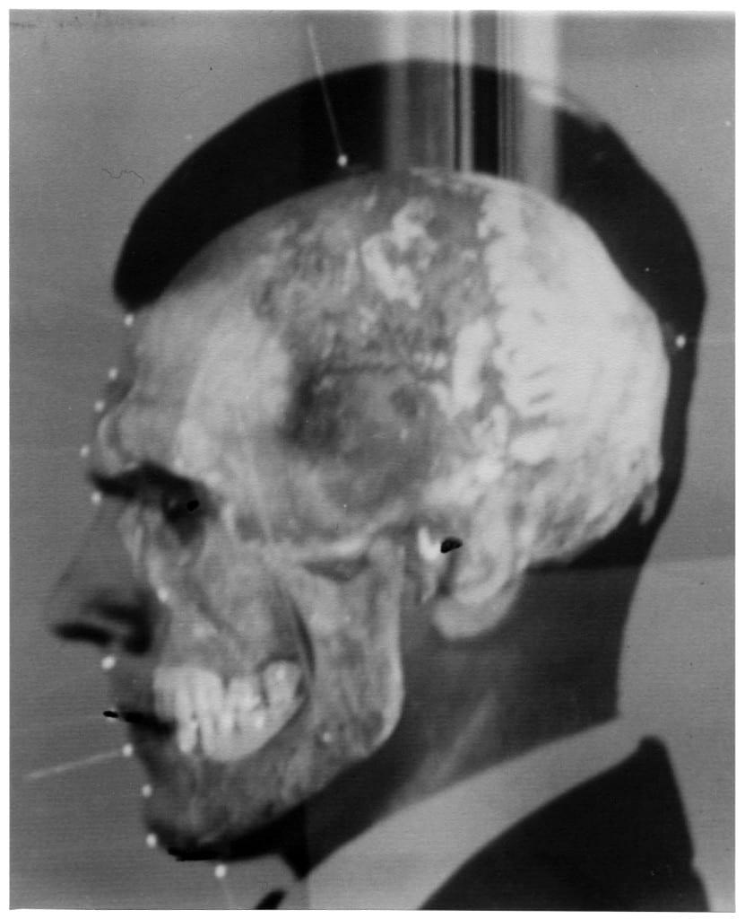 Face-Skull Superimposition of Josef Mengele, Medico-Legal Institute labs, São Paulo, 1985. Courtesy of Maja Helmer
