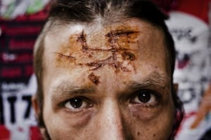 On a Saturday night in downtown Athens, Dionisis, a 32 year old Greek, was attacked by a number of men who claimed to be from the Golden Dawn party. They beat him up and used a broken beer bottle to cut a swastika in his forehead. Dionisis is part of the leftist/anarchist movement. Image © Erik Ahman.
