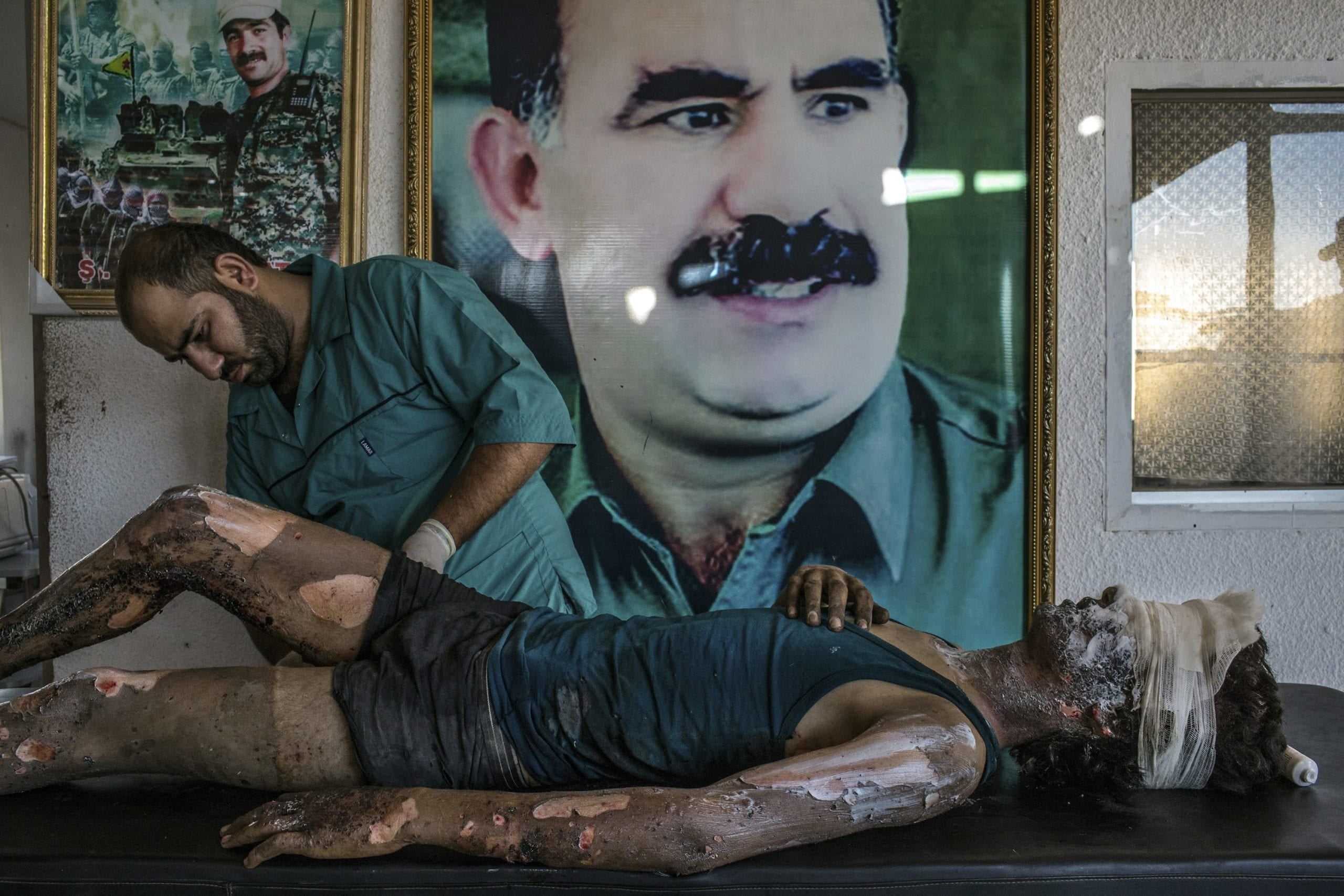 Hasaka, Syria - August 1, 2015. A doctor rubs ointment on the burns of Jacob, 16, in front of a poster of Abdullah Ocalan, center, the jailed leader of the Kurdistan Workers' Party, at a YPG hospital compound on the outskirts of Hasaka. According to YPG fighters at the scene, Jacob is an ISIS fighter from Deir al-Zour and the only survivior from an ambush made by YPG fighters over a truck alleged to carry ISIS fighters on the outskirts of Hasaka. Six ISIS fighters died in the attack, 5 of them completely disfigured by the explosion (c) Mauricio Lima for The New York Times