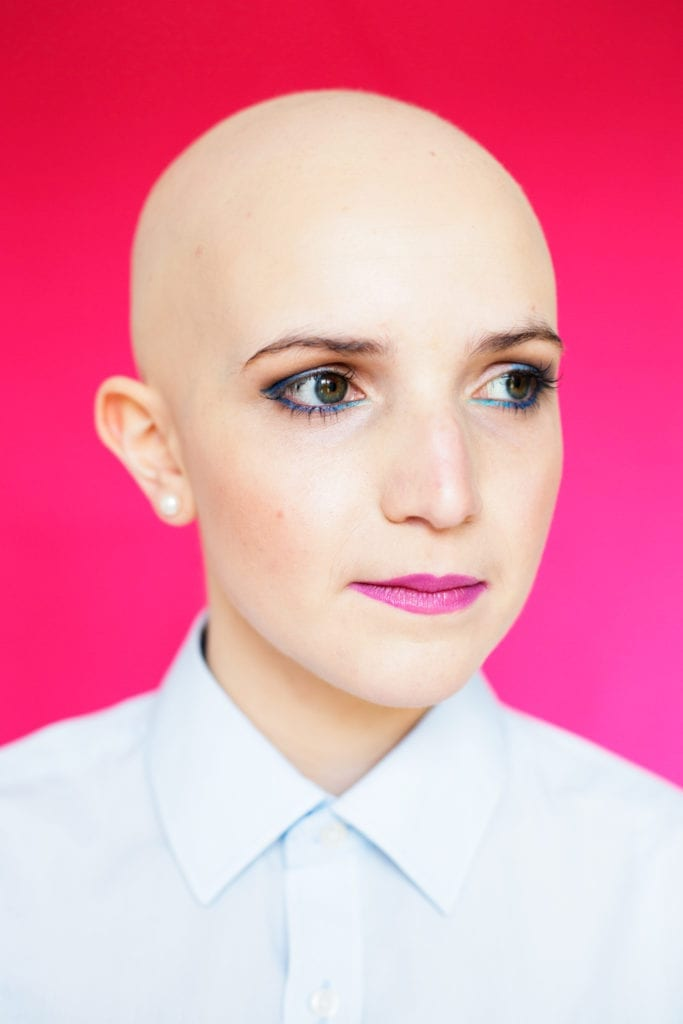 Emily from the series Unfading featuring women affected by the auto-immune hair loss condition alopecia.